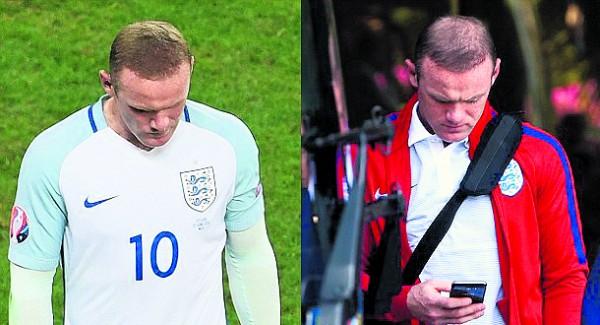 ▲ 2016 유로대회에서 잉글랜드는 아이슬란드에 1-2로 충격적인 패배를 당하고 탈락한다. 패배 못지 않게 대중의 눈을 사로 잡은 것은 루니의 머리 상태였다. (좌) 아이슬란드와의 경기 중의 루니와 (우) 경기에 패한 후 다음 날 아침 호텔을 나서는 루니의 머리숱에 많은 차이가 보인다. 루니는 그 동안 경기 중에 머리의 빈 부분을 일시적으로 채워주는 컨실러를 사용한 것으로 보여진다.